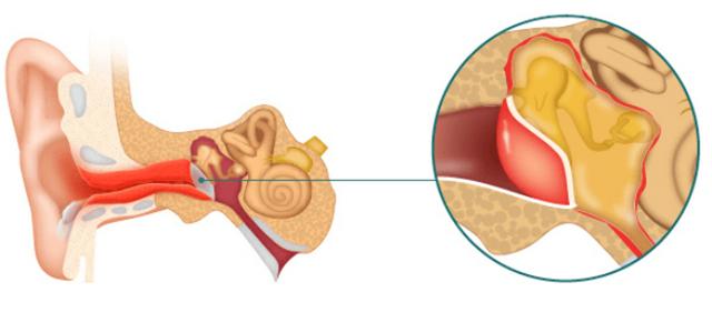 Барабанная перепонка уха. перфорация или разрыв барабанной перепонки и ее лечение.