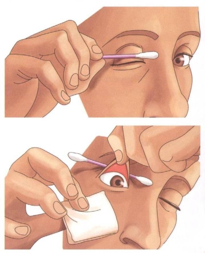 Болят глаза от сварки: чем лечить и что делать – лучшие советы