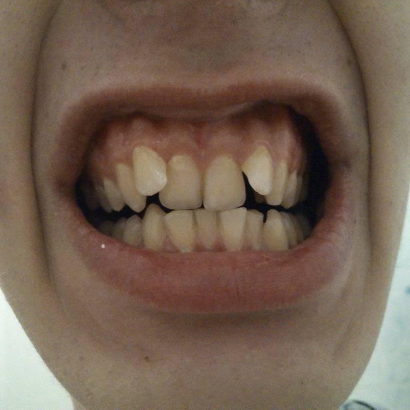 почему у детей растут кривые зубы