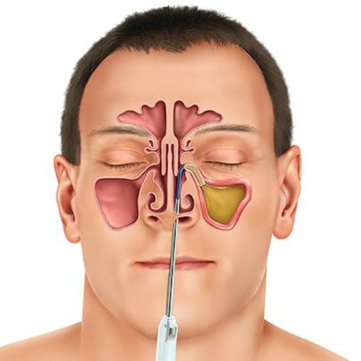 Односторонний гайморит: причины, симптомы и лечение