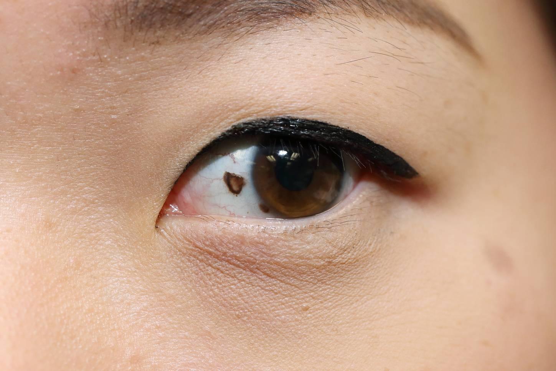 черная точка в глазу на белке