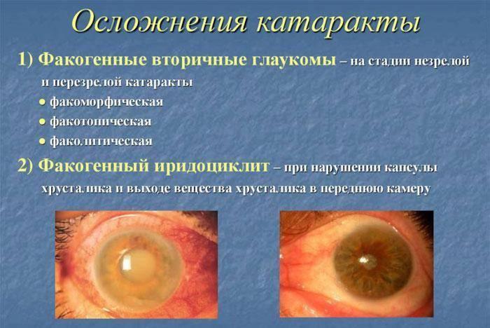 лечение глаукомы народными средствами