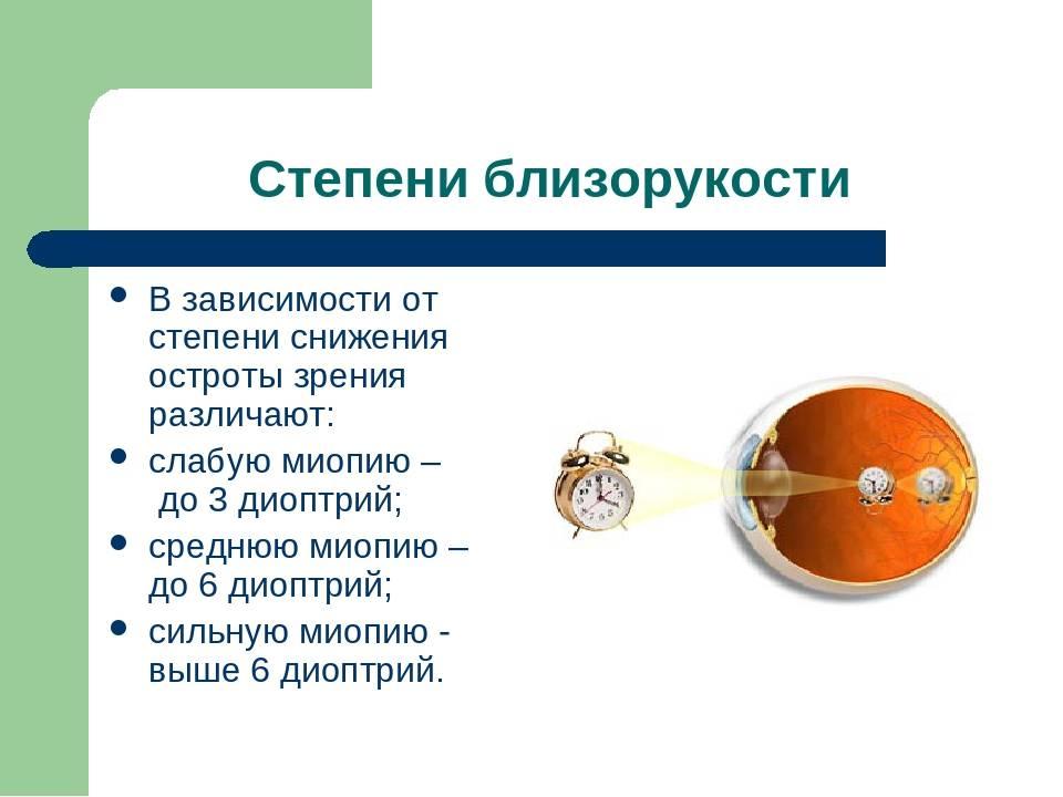 Близорукость и беременность. проблемы со зрением во время беременности и родов