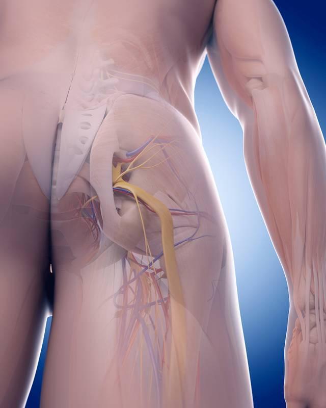 Воспаление седалищного нерва - симптомы и лечение медикаментозными и народными средствами