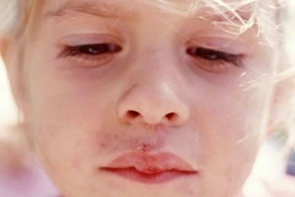 Частый герпес на губах у ребенка