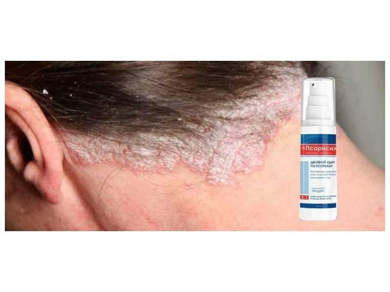 Псориаз на голове – признаки, виды и новое в лечении