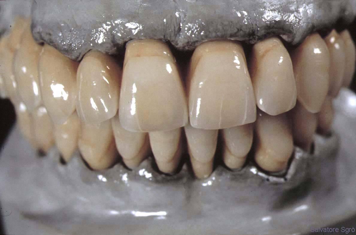ортодонтическая дуга