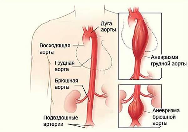 атеросклероз брюшного отдела аорты лечение