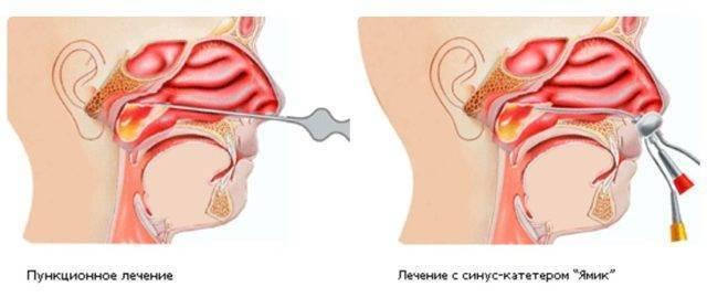 Лечение гайморита при гв: вопросы по отоларингологии