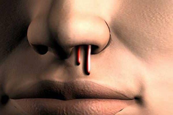 Кровь из носа: отчего при простуде и насморке течет кровь
