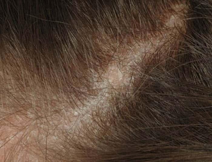 Себорейный дерматит у детей. клинические рекомендации.