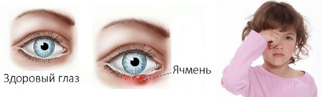 Ячмень на глазу причины появления и лечение у детей