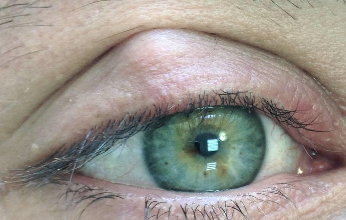 киста на глазу