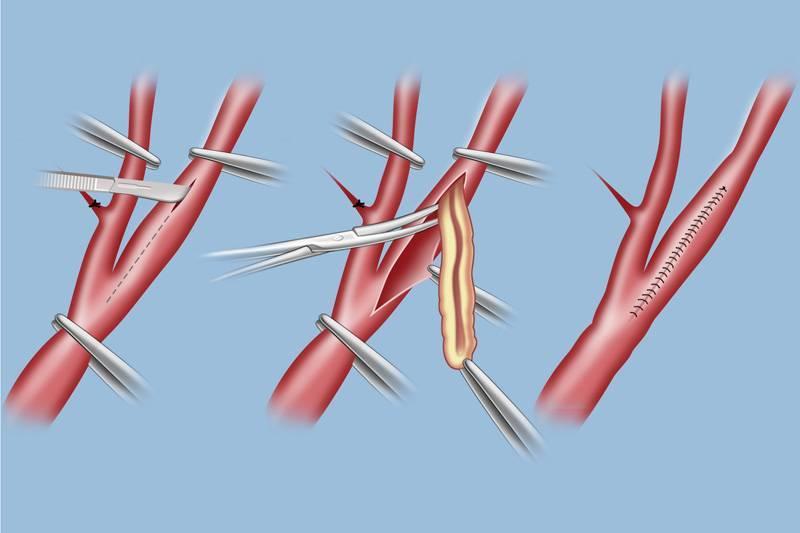 Стеноз и стентирование сонной артерии