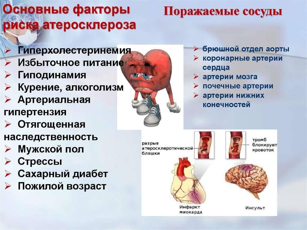 лечение атеросклероза шейного отдела