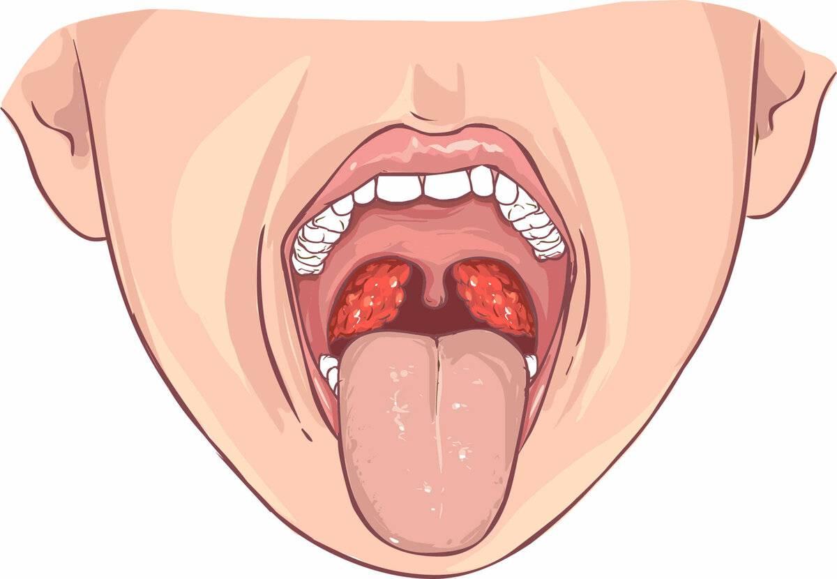 Как быстро снять отек горла при ангине