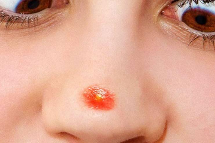Причины появления и лечение прыщей на носу у женщин