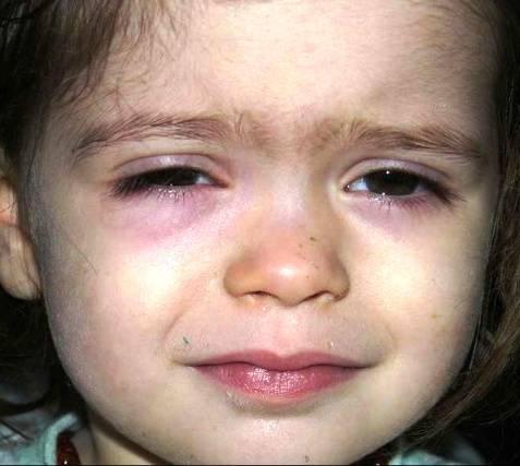 почему у грудничка синяки под глазами