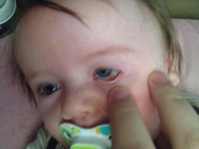 у ребенка под глазом лопнул сосуд
