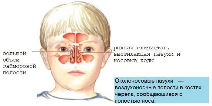 гайморит у ребенка 3 лет