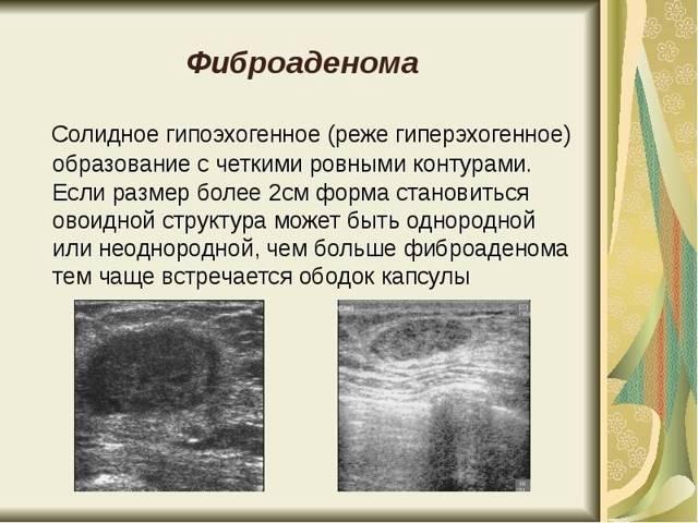 Показания, подготовка, техника операции, осложнения после удаления фиброаденомы молочной железы