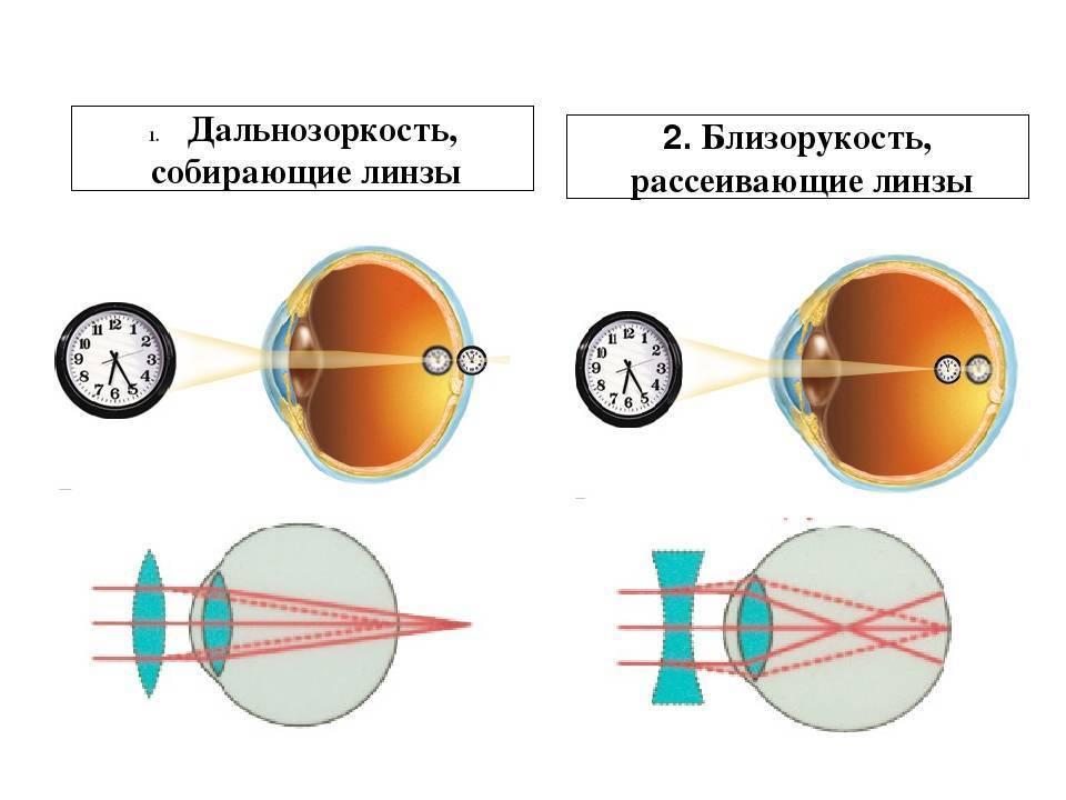линзы при дальнозоркости