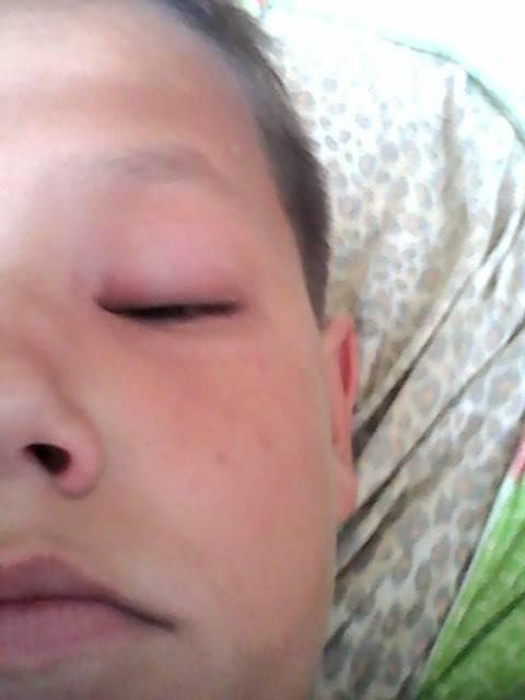 Что делать при укусе мошки в глаз?