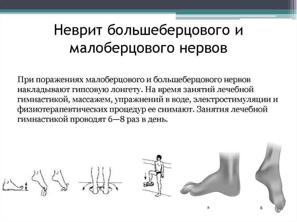 Одонтогенные невриты (невропатии) луночковых нервов