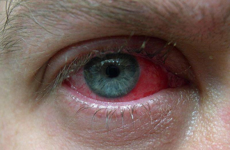 почему краснеют глаза после бани