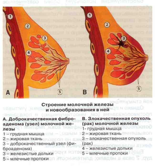 Причины боли в грудной железе