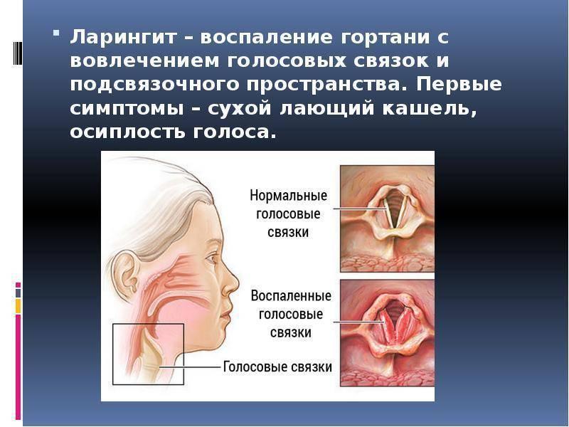 Хронический ларингит: классификация, симптомы, лечение