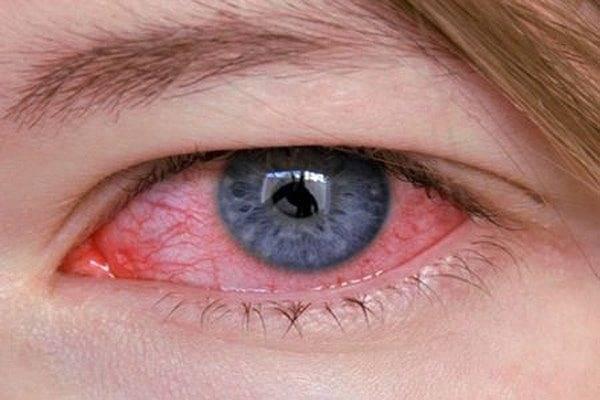 конъюнктивит чем промывать глаза