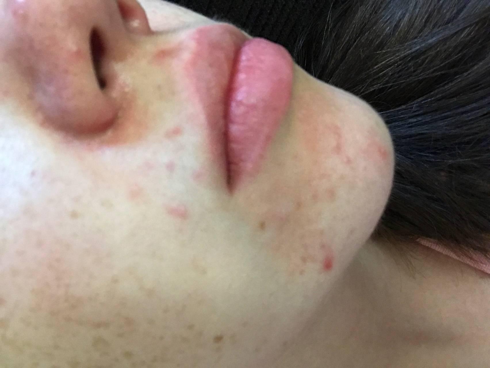 Дерматит на лице: виды, причины, симптомы и лечение
