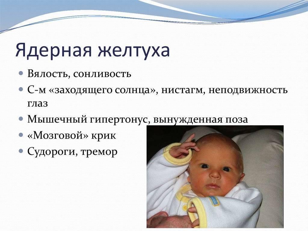 Желтуха новорожденных: причины, лечение и последствия