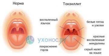 Папиллома в горле у ребенка – симптоматика и методы лечения