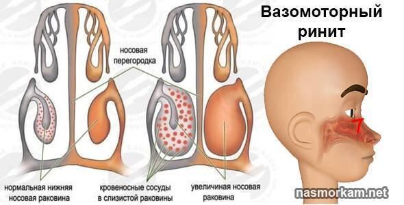 Лечение вазомоторного ринита в домашних условиях