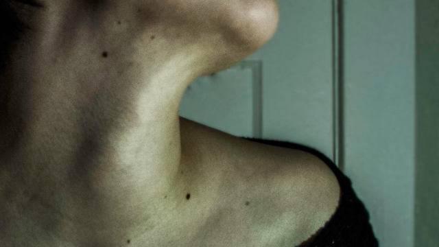 Симптомы и лечение молочницы в горле