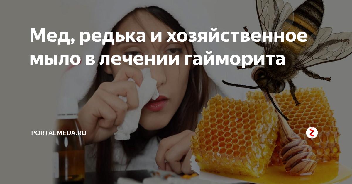 Как применять хозяйственное мыло при гайморите?