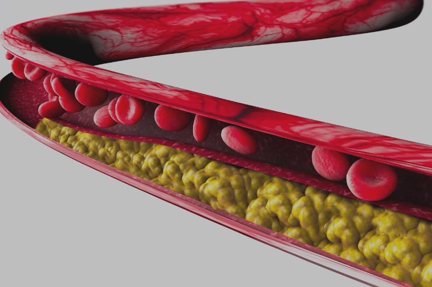 Продукты, которые выводят холестерин из организма