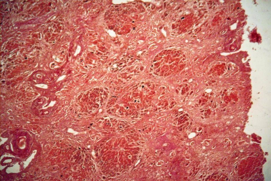 Что такое мелкоузловой цирроз печени