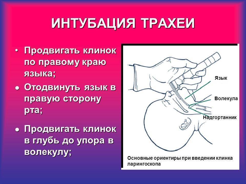 Интубация трахеи — википедия. что такое интубация трахеи
