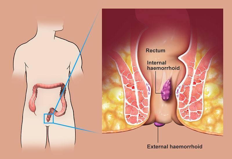 Определяем по характеру крови в кале при геморрое наличие осложнений самой болезни или озлокачествление процесса для назначения корректного лечения