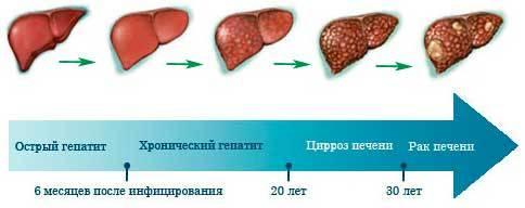 Вирусные гепатиты.