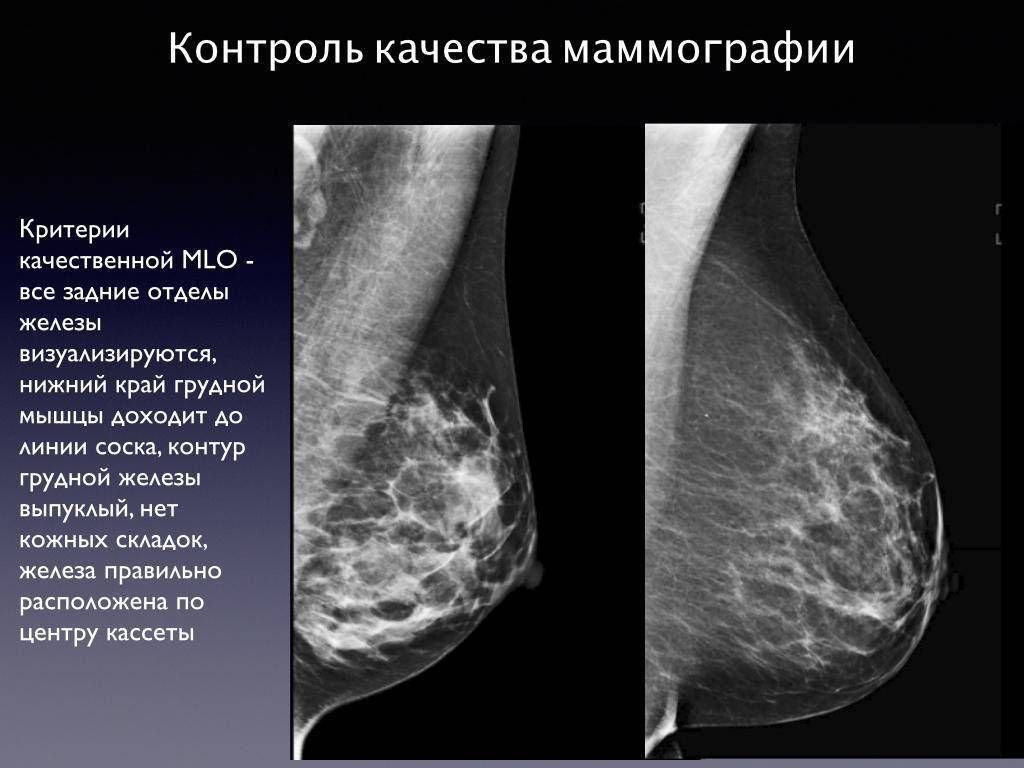 результаты маммографии расшифровать