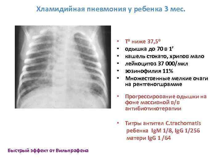 Хламидия пневмония