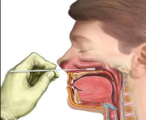 В горле собирается слизь. причины скопления мокроты в горле и способы избавления