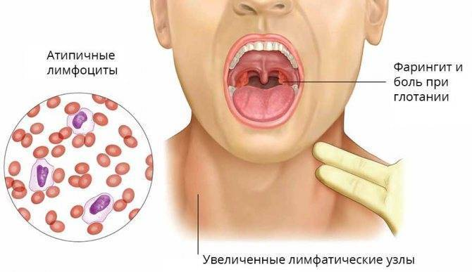 Вирус 2017 болит горло