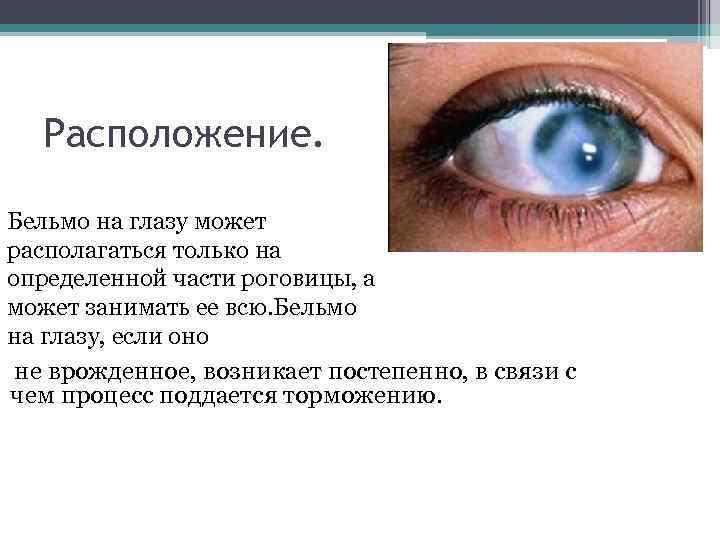 Как вылечить бельмо на глазу. бельмо на глазу: симптомы, причины, лечение и последствия