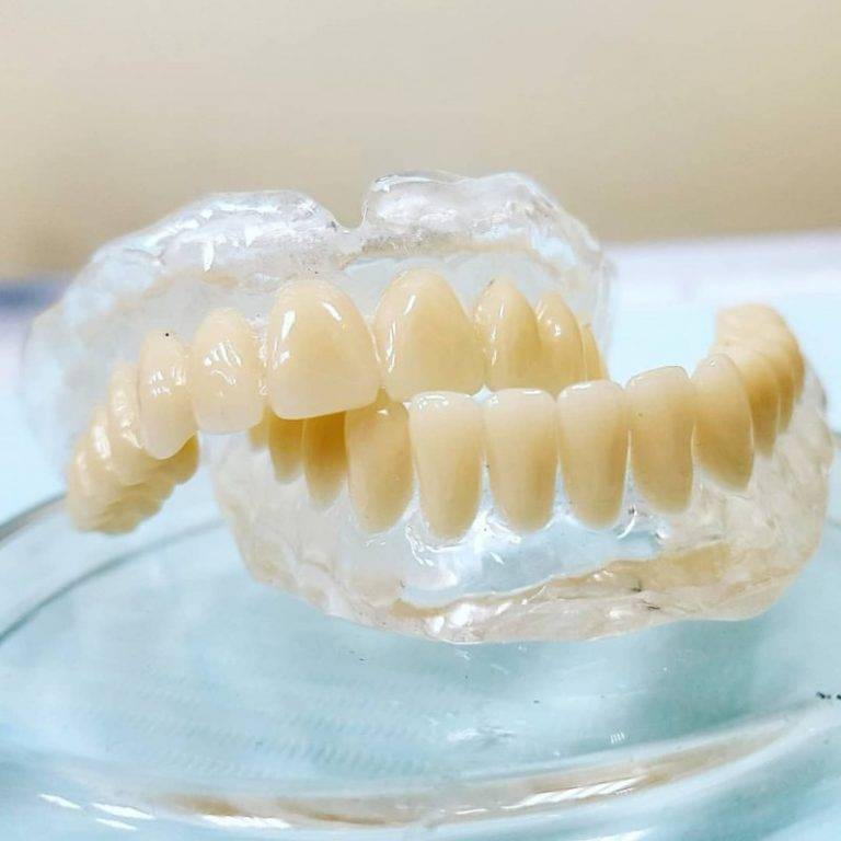 Назначение и показания силиконовых протезов зубов