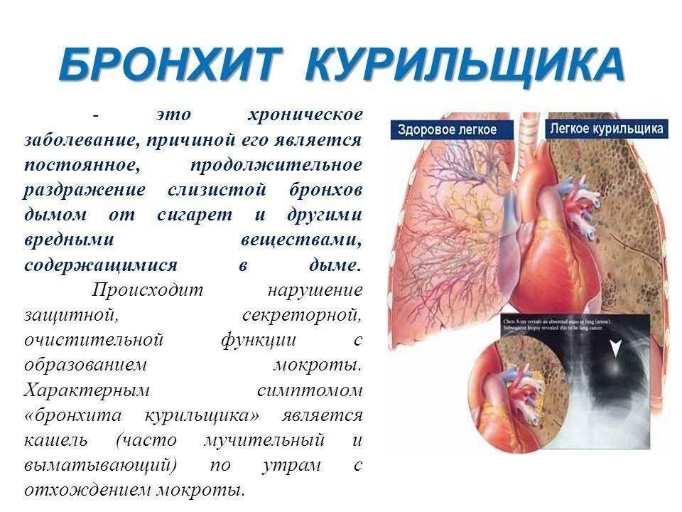 Лечение застаревшего кашля народными средствами